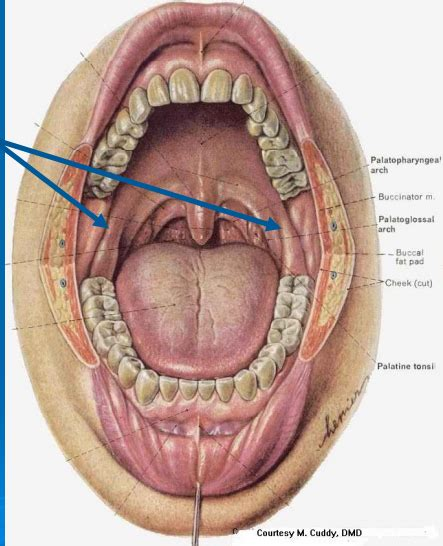 herpes of the mouth picture 7