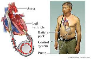 yeast in blood system with lvad picture 15