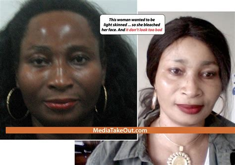 skin whitening pills for black people picture 5