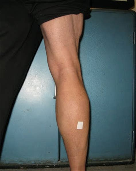 calf muscle pulls picture 10
