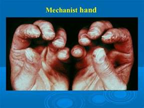 infectious muscle diseases picture 9