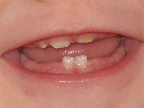 childs teeth are turning yellow picture 11
