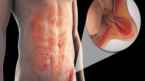 ana,s biggest bulging bladder picture 13