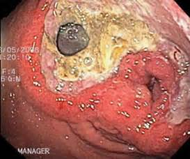 nausea and perforated bowel after colonoscopy picture 5