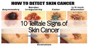 skin cancer warning signs picture 15