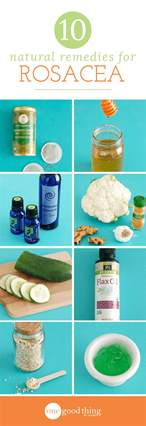 homemade herbal for rosacea picture 17