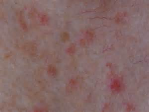skin cancer on chest picture 1