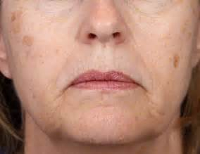 aging spots cure picture 10