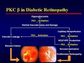 emedicine diabetic retinopathy picture 2
