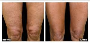 non surgical procedure to tighten skin on legs picture 8
