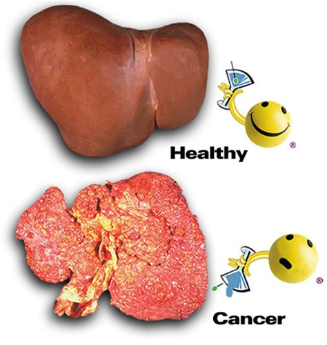 do you have pain with liver cancer picture 17