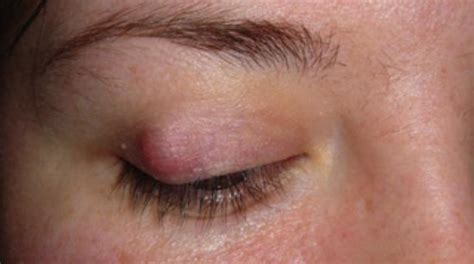skin growths near eyes picture 7