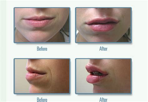 lip plumping by lasers los angeles picture 9