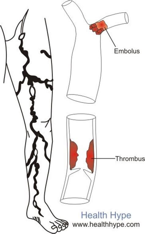 High blood pressure pain in arms and legs picture 4
