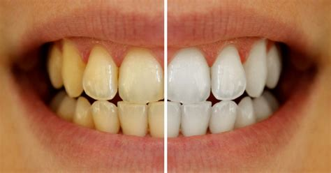 home remedies that can help whiten teeth picture 7