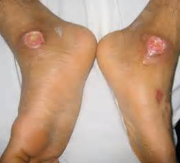 herbal treatment for diabetic wounds picture 7