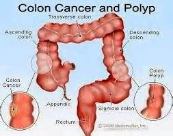 prognosis in stage 4 colon cancer picture 6