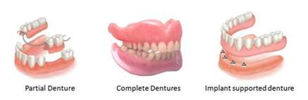 different types of false teeth picture 6