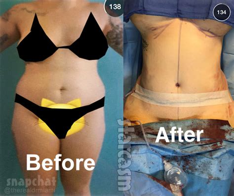 lipo injections for weight loss picture 9