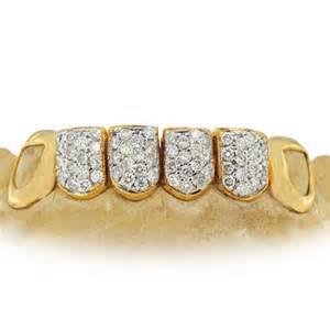 10k icedout teeth by nelly picture 15