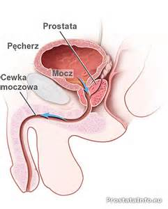 Info on prostate picture 6