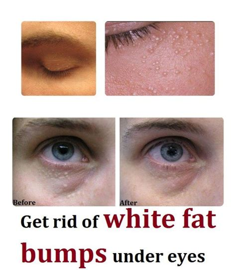 white deposits of fat in lips picture 5