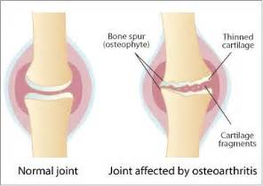 degenerate joint disease picture 1