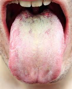 yeast infection in mouth picture 7