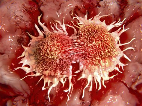 colon cancer stage 4 picture 10
