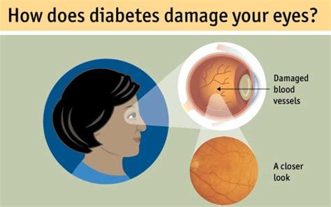 diabetic eye radio spots picture 3