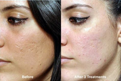before and after micro needling side effects picture 11