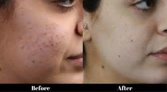 needling for acne scarring picture 2