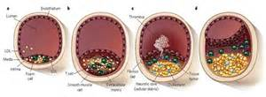 Cholesterol and plaque picture 18
