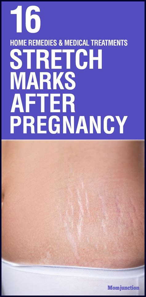 help me take off stretch marks picture 4