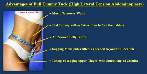 bladder tuck surgery picture 5