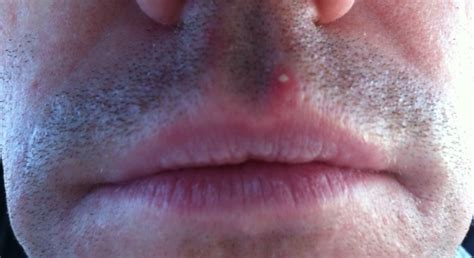 stop breakouts herpes picture 9