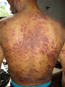 herbal treatment for hiv 2015 picture 11