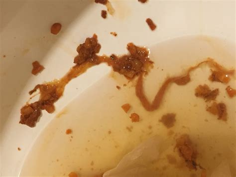 worms in bowel movement picture 6