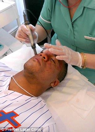 watsons scar removal picture 14