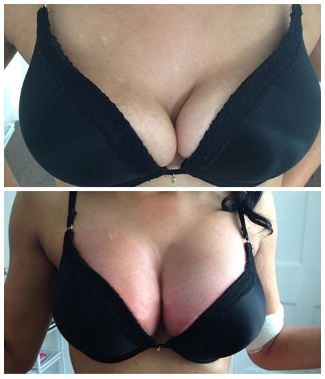 difference between dimpling of breast and stretch marks picture 2
