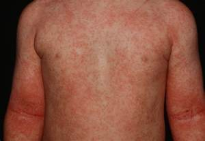 atopy skin condition picture 6