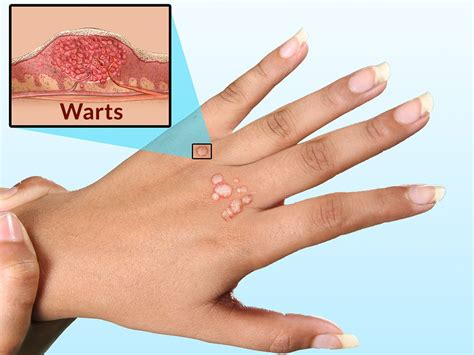 can you get vaginal hpv from wart on finger picture 9