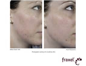 acne scar removal in bay area picture 11