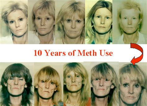 west coast anti aging picture 3