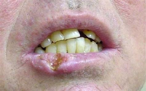 lip cancer photo picture 9