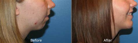 breast augmentation colorado picture 1
