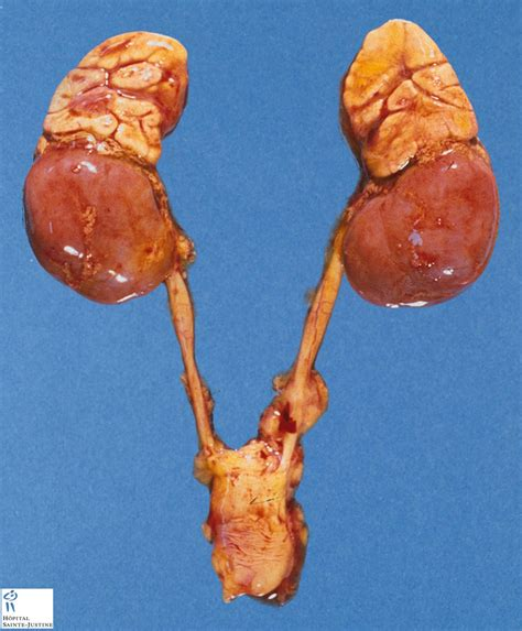 cyst on liver or spleen picture 9