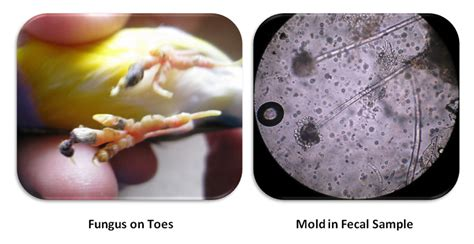 foot skin infections picture 7