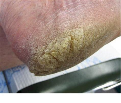 foot skin fissures picture 5