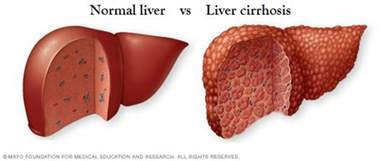 which poisons cause liver damage picture 2